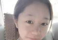 福州海峡薛克乾注射隆鼻失败修复案例术后对比照片分享