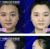 在广州韩妃医学美容医院体验美版超声刀和线雕提升全部过程