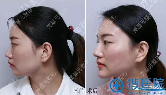 玻尿酸隆鼻+面部液态提拉侧面对比效果