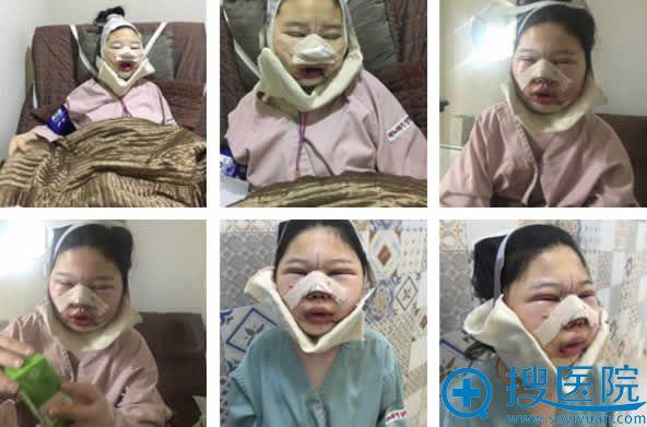 韩国巴诺巴奇面部轮廓手术第1天