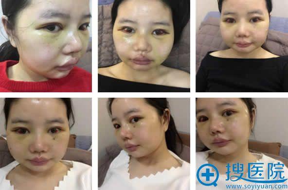 巴诺巴奇做瓜子脸手术14天