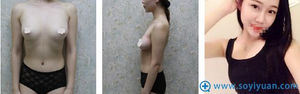 武汉中爱整形医院付荣峰假体隆胸案例术后恢复日记