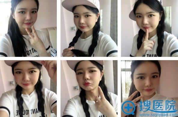 韩国巴诺巴奇做面部吸脂手术