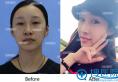 福州海峡薛克乾隆鼻好不好 美女主播做完鼻综合术后效果图分享