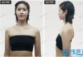 沈阳杏林隆胸谁做得好 崔昌墉曼托傲诺拉假体隆胸案例图片分享