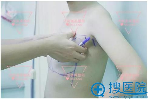 【亲身经历】看我花1万多找济南美莱汪峰做假体隆胸效果怎么样
