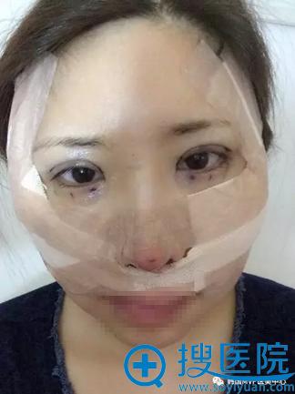 颧骨双眼皮隆鼻手术术后即刻效果