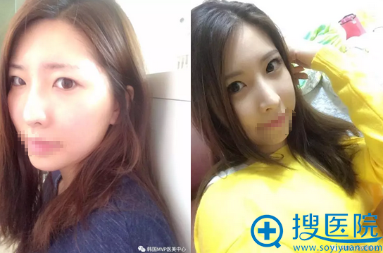 韩国MVP整形医院颧骨双眼皮隆鼻术后对比效果