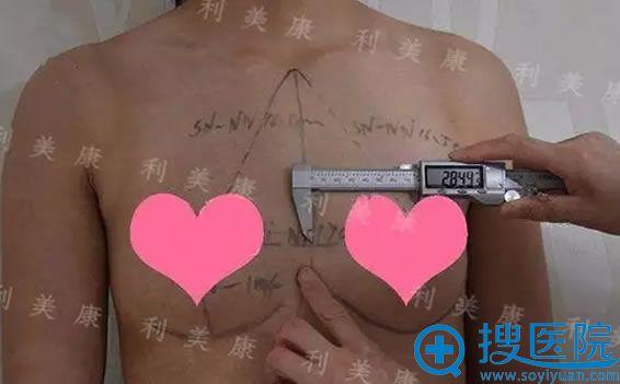 鲁天宇院长正在为我面诊测量胸部