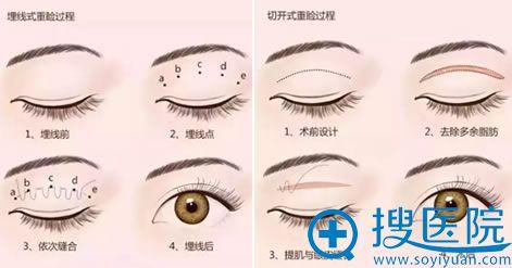 眼睛一单一双可不可以做双眼皮