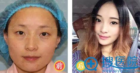 北京延世整形一单一双双眼皮案例