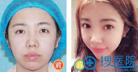 北京延世整形双眼皮案例效果