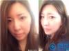 韩国MVP整形医院轮廓整形案例:颧骨+双眼皮+隆鼻术后效果