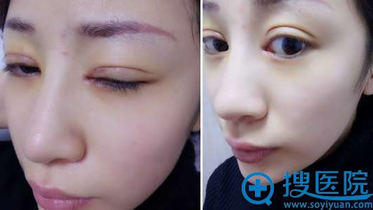 大连刘志刚双眼皮修复5天的效果