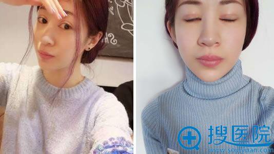大连刘志刚双眼皮失败修复7天效果