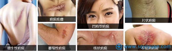 疤痕的类型有哪些?