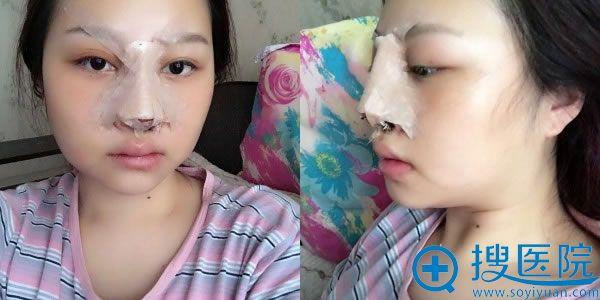重庆原辰做鼻综合手术当天效果
