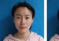 武汉伊美馨埋线双眼皮恢复期照片告诉你黄雷院长技术怎么样