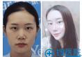 杭州隆鼻哪里最好?杭州yestar自体肋软骨隆鼻案例过程图片分享