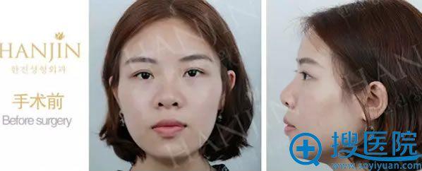 在昆明韩辰整形医院做鼻修复术前照