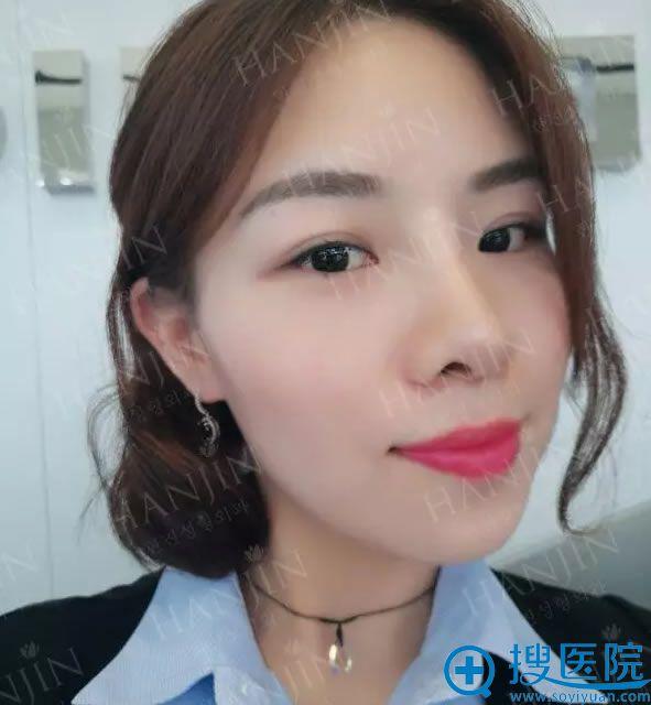 姜东求院长做鼻子修复的案例照片
