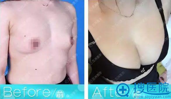 杨仁宝假体丰胸前后对比效果