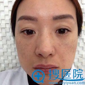 天津紫洁去眼袋7天的恢复图片