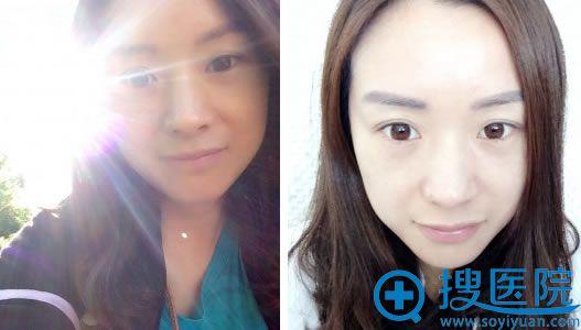 非手术祛眼袋2个月效果图