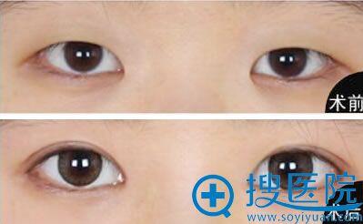 双眼皮案例图_天津欧菲医疗美容医院