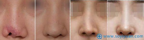 朴光哲教授鼻修复案例图