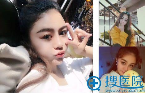 北京世熙丁砚江做鼻子的效果怎么样