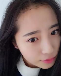20岁美女在吴氏嘉美门诊部种植发际线前后对比照片