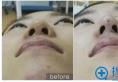 南京华美隆鼻咋样?你没见过的线雕隆鼻手术全过程图片分享