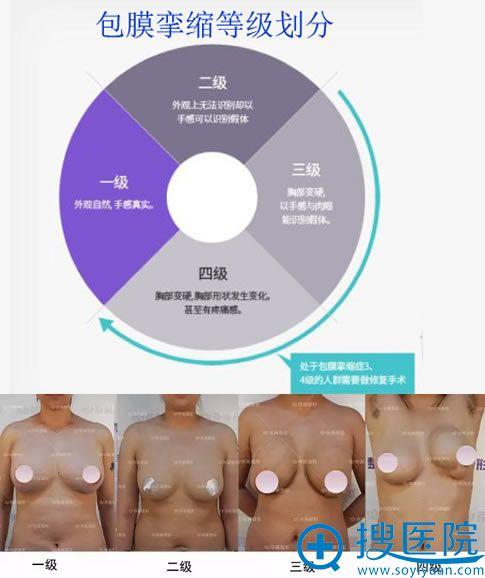包膜挛缩严重程度及等级划分