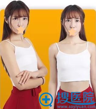 沈阳百嘉丽李衍江假体隆胸术前照片