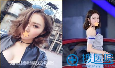 沈阳百嘉丽李衍江假体隆胸术后2个月效果展示