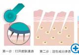 济南伊美尔美颜微针祛痘案例效果图分享 一针焕颜横扫肌肤问题