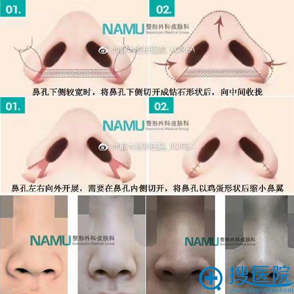 韩国那木整形医院鼻翼缩小手术