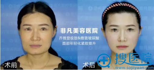 深圳非凡整形美容医院乔雅登玻尿酸除皱案例