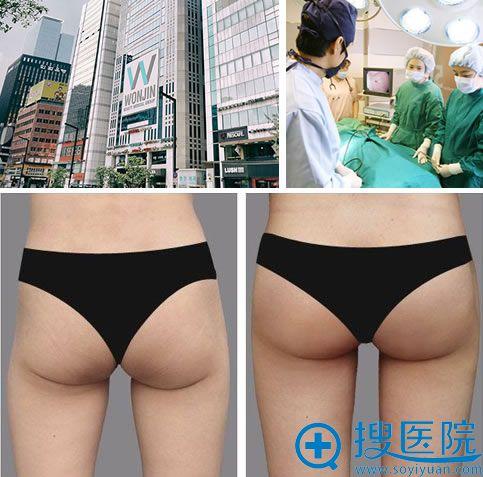 韩国原辰自体脂肪丰臀案例