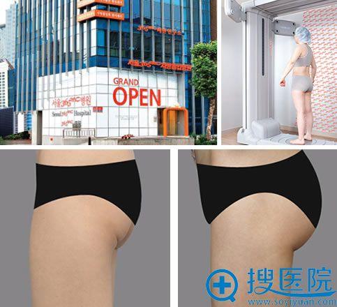 韩国首尔365mc医院及吸脂丰臀案例