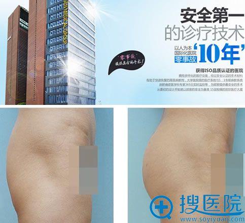 韩国丽珍整形医院及吸脂丰臀案例
