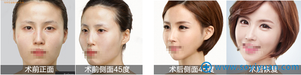 郑州天后余成坤双眼皮隆鼻瘦脸案例