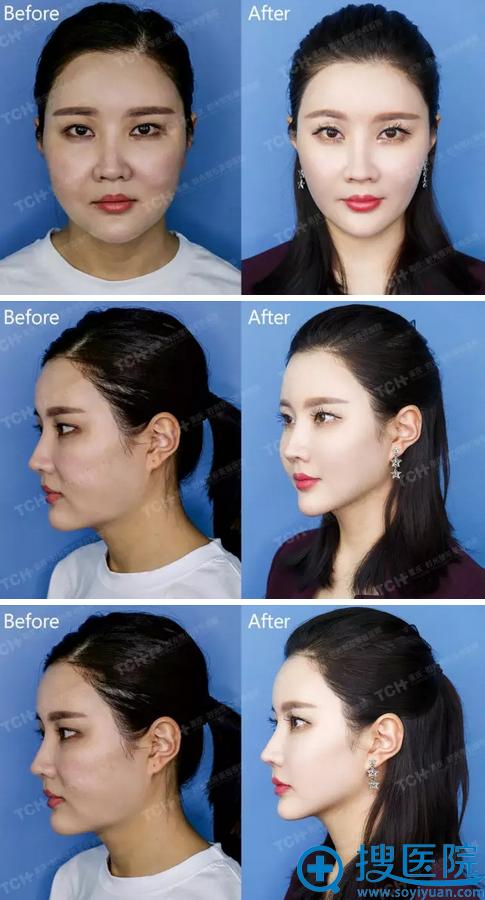 杭州时光面部线雕前后对比案例