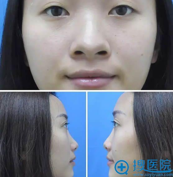 在南京维多利亚整形医院做隆鼻术前照