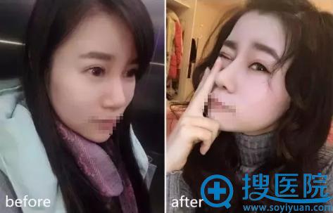 长沙雅美张先智膨体鼻综合术后对比照片