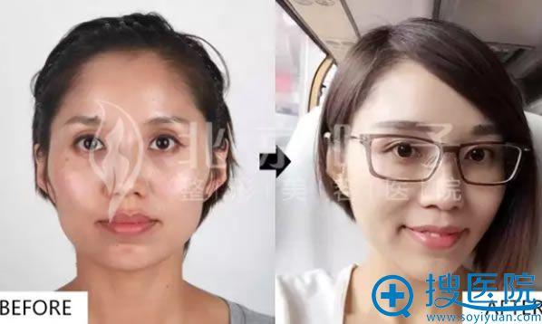 北京叶子整形医院自体脂肪填充全脸前后对比图