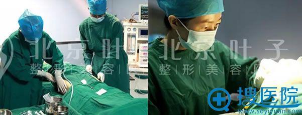 抽取大腿脂肪和填充手术过程