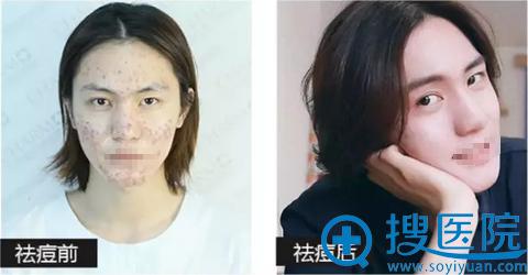 重庆当代整形祛痘治疗效果对比照片