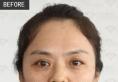 刚在沈阳杏林找王贵雄专家做完祛眼袋手术10天了 看效果怎么样